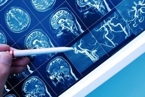 Vaskulaarinen dementia: oireet ja hoito