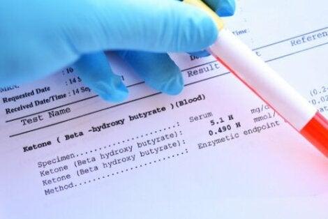 Laboratorioissa suoritettavien verikokeiden avulla voidaan tutkia sekä veren kiinteää että nestemäistä osaa