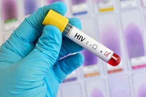Yhdistyneiden Kansakuntien tilastojen mukaan jopa noin 8 miljoonaa ihmistä ei tälläkään hetkellä tiedä kantavansa virusta ja voivat näin ollen jatkaa sen tartuttamista