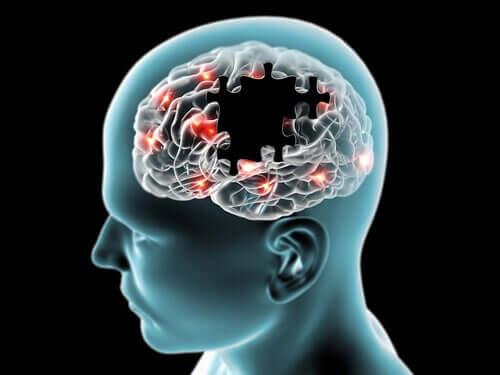 Aivot riippuvat jatkuvasta glukoosin kuljetuksesta verenkiertoon ylläpitääkseen asianmukaista toimintaansa