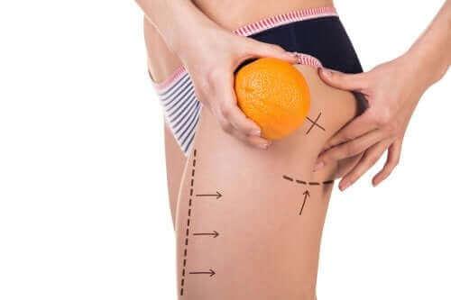 Kolme ruokavaliota selluliitin ehkäisemiseksi
