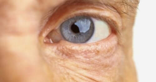 Silmänpohjan ikärappeuman aiheuttajat ovat edelleen tuntemattomia