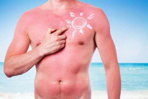 Auringon haitalliset vaikutukset iholle.