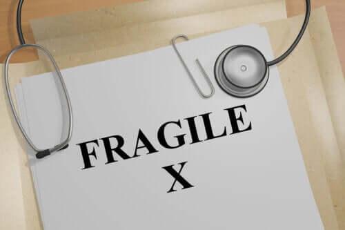 Fragile X-oireyhtymä: oireet ja hoito