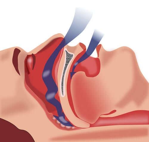 Uniapnean aikana normaali hengitysrytmi estyy ja uni katkeaa, jolloin uniapneasta kärsivä ihminen herää useita kertoja saman yön aikana