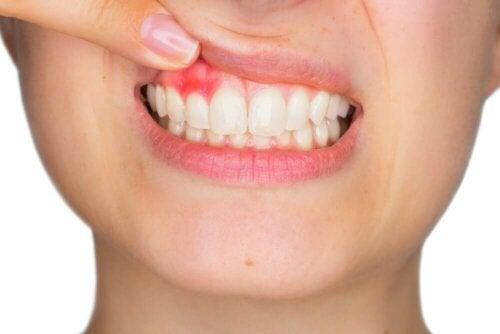 Ienten hoidossa suositellaan yleensä pehmeitä suuvesiä, jotka eivät sisällä ollenkaan alkoholia