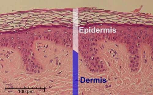 Salisyylihappo vaikuttaa ihon rakenteeseen