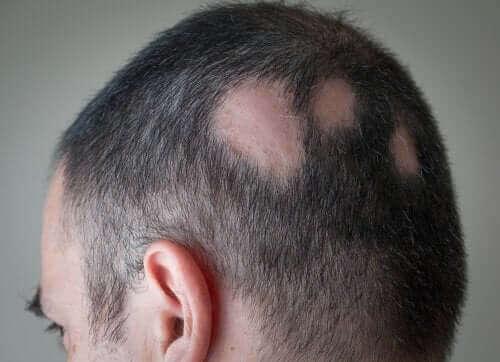 Alopecia ilmenee kaljuina läiskinä miehillä