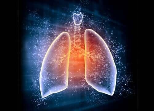 Keuhkoödeemassa keuhkorakkuloihin kulkeutuu nestettä hapen sijaan