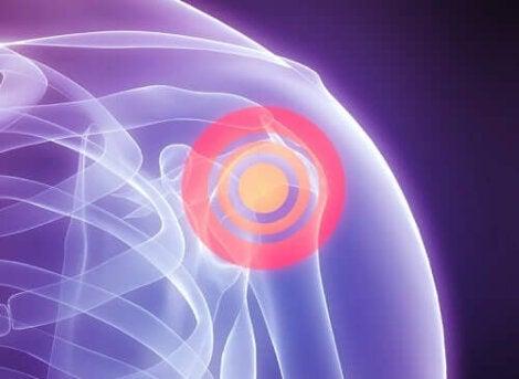Kiertäjäkalvosimen repeämä voi aiheuttaa tylppää kipua olkapäässä