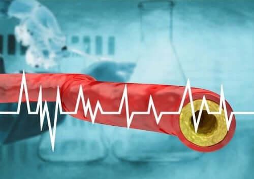 Verisuoni ja sydänkäyrä.