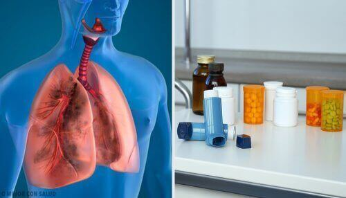 Sumutinhoidossa lääkeaine muutetaan hienojakoiseksi sumuksi, joka hengitetään keuhkoihin