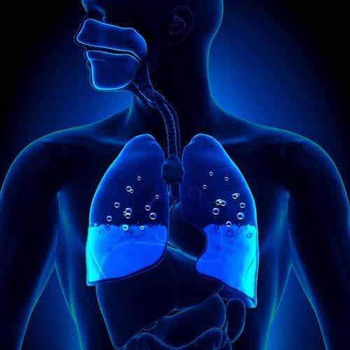 Keuhkoödeema: oireet ja aiheuttajat