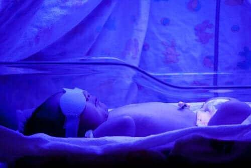 Vastasyntyneen vauvan keltaisuus: mitä siitä tulee tietää