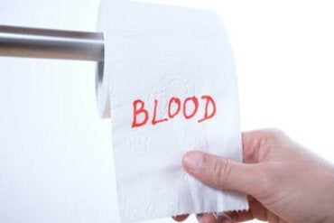 Mistä peräaukon verenvuoto johtuu?