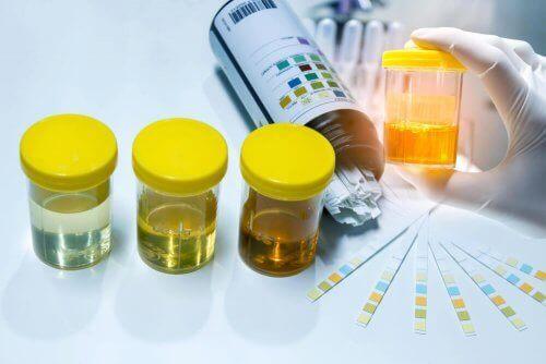Testiliuskat sisältävät aineita, jotka muuttavat väriä havaitessaan virtsasta mitattavan kohdeaineen läsnäolon