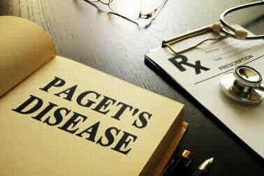 Pagetin tauti luustossa – kaikki mitä tarvitsee tietää