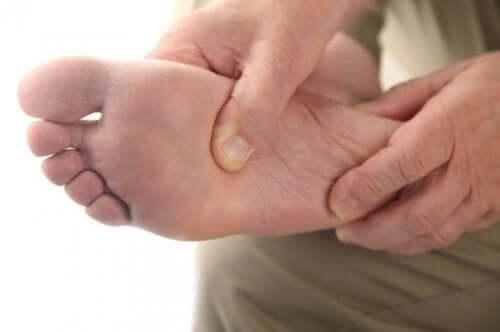 Diabulimia voi johtaa diabeetikon jalkaongelmiin