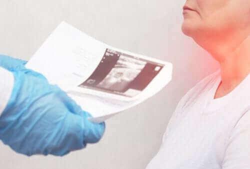 Kilpirauhasen nodulit: oireet ja aiheuttajat