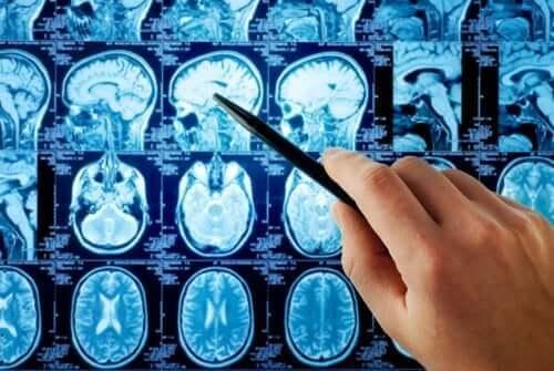 Aivojen etäpesäkkeet voidaan nähdä kuvissa.