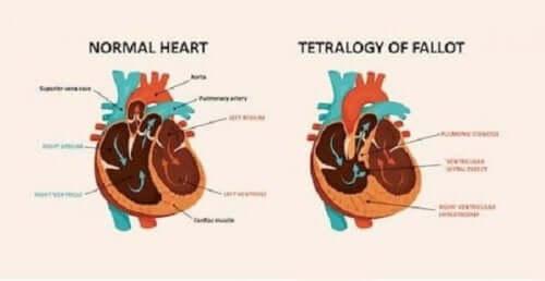 Terve sydän ja synnynnäinen sydänsairaus.