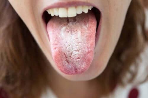 Mustat läiskät kielessä voivat johtua sieni-infektiosta
