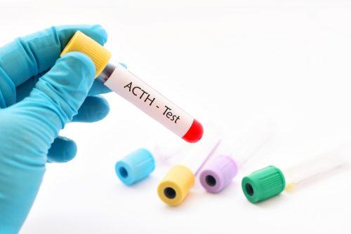 Veren kortikotropiinitaso vaihtelee vuorokaudenajan mukaan