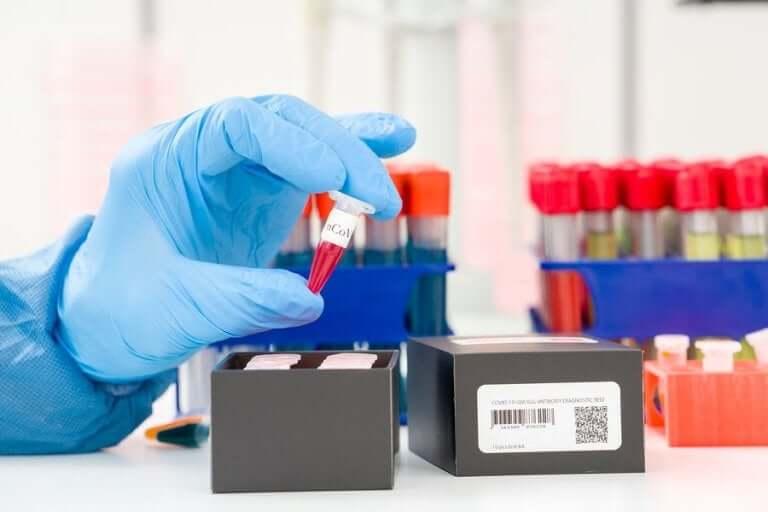 Koronaviruksen toteaminen: mikä on PCR-testi?
