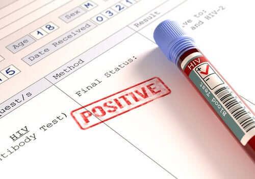 Onko koronavirus vaarallisempi HIV-positiivisille?
