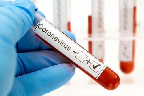 Positiivinen koronavirustesti.