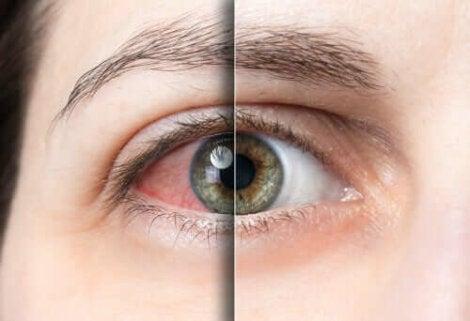 Silmän sidekalvotulehdus on koronaviruksen uusi oire