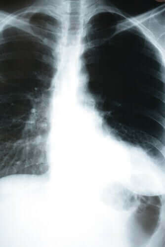Oireeton keuhkokuume voi olla koronavirustartunnan oire.