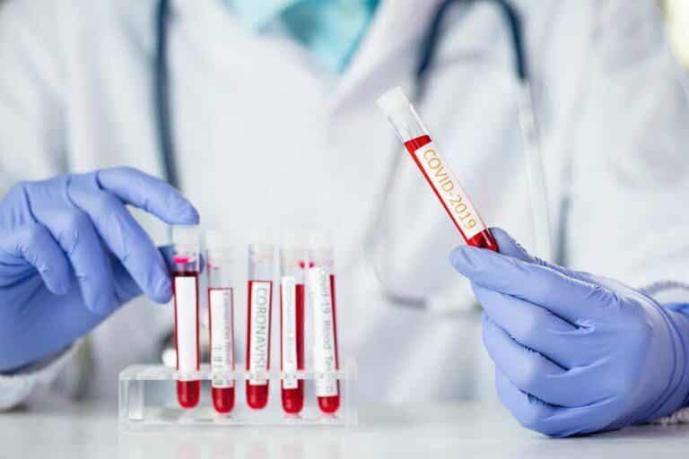 Mitä merkitystä veriryhmällä on koronaviruksen kannalta?