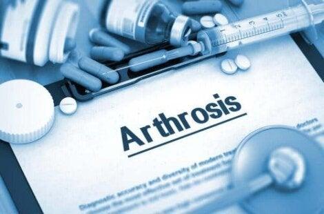 Etorikoksibia käytetään muun muassa nivelreuman oireiden lievittämisessä