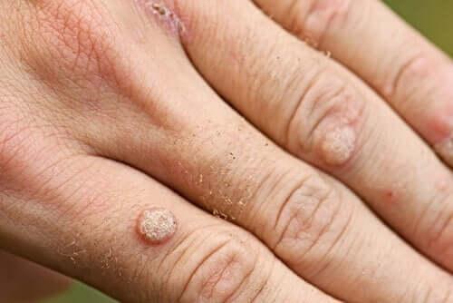 Syylien eri tyyppejä ja niiden hoito