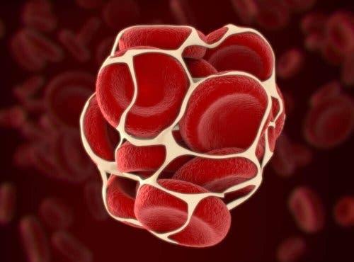 Veren hyytymisessä voi esiintyä ongelmia