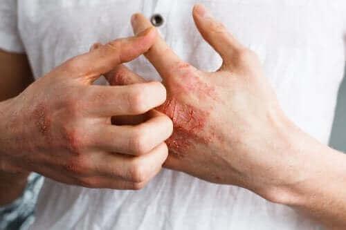 Mikä on atooppinen dermatiitti?