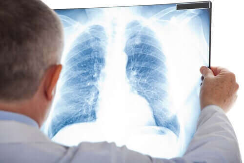 Keuhkopussintulehdus voidaan havaita röntgenillä.