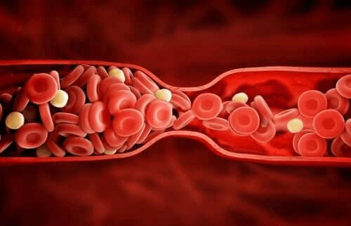 Atorvastatiini on lääke korkeaan kolesteroliin