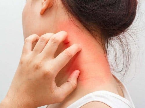 Atooppinen dermatiitti aiheuttaa punoitusta iholla.