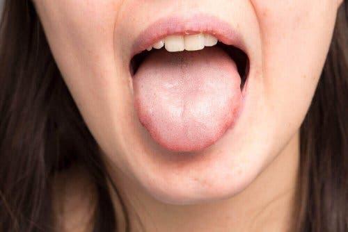 Paksu sylki aiheuttaa suun kuivuutta.