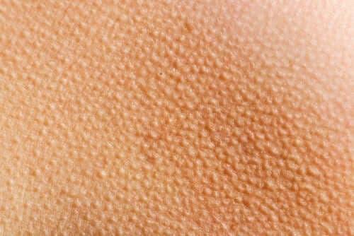 Piloerektio: kun iho menee kananlihalle