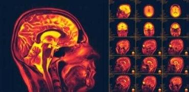 Mitä aivojen neuroplastisuus tarkoittaa?