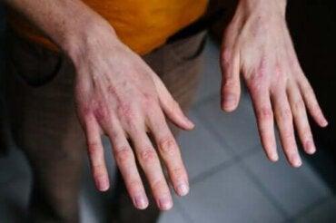 Suojaa kuivat ja halkeilevat kädet kylmältä