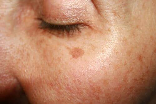 Syntymämerkit saattavat pysyä iholla koko eliniän