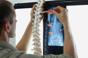 Luumetastaasit: oireet ja hoitomenetelmät