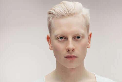 Mitä on albinismi?