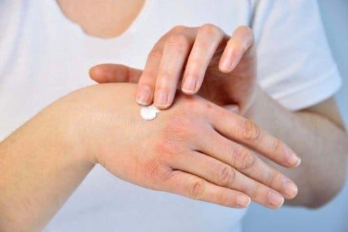 Kuivat ja halkeilevat kädet voi suojata kosteusvoiteella