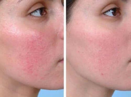 Couperosa aiheuttaa punoitusta iholla
