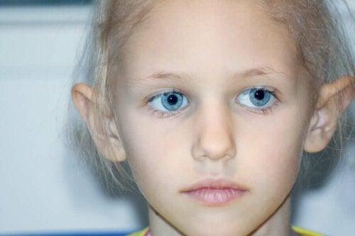 Retinoblastooma eli silmän verkkokalvon varhaissolusyöpä on onkologinen sairaus, joka on liitetty geenimutaatioon